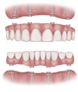 best dental implant clinic in ashok vihar